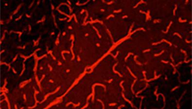 Glial Pathologies