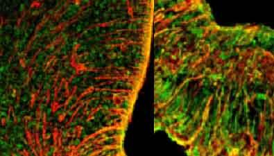 Hypothalamus et Oestrogènes
